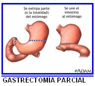 signos y sintomas del cancer gastrico