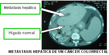 Cancer de colon con metastasis en higado y pulmon supervivencia