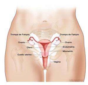 metastasis del cancer de cuello de utero