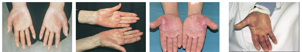 después de la radioterapia prostática con linfocitos bajos