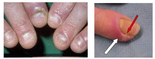 la disfunción eréctil desaparecerá después del tratamiento con radiación